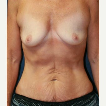 49 year old mother of two breast augmentation and tummy tuck Dr. Steve Laverson San Diego before 1590116