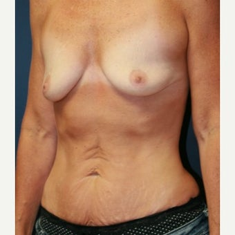 49 year old mother of two breast augmentation and tummy tuck Dr. Steve Laverson San Diego 1590116
