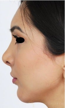18-24 year old woman treated with Rhinoplasty after 3259452