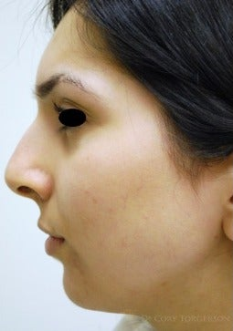 18-24 year old woman treated with Rhinoplasty before 3259452