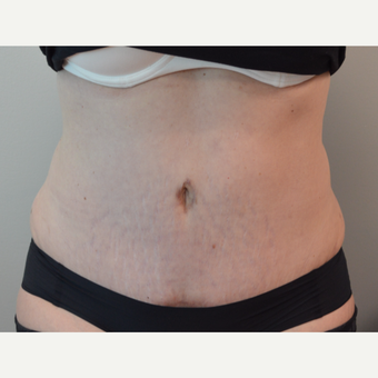 35-44 year old woman treated with Tummy Tuck after 3369679