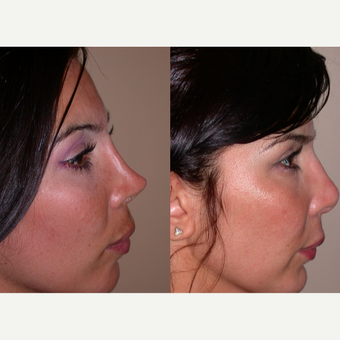 45-54 year old woman treated with Revision Rhinoplasty before 3521507