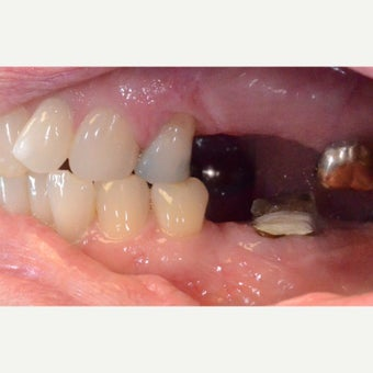 Dental Implant Bridges to Replace Missing Back Teeth