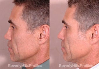Revision Rhinoplasty before 681870