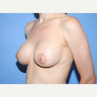 25-34 year old woman treated with Breast Lift with Implants after 3763270