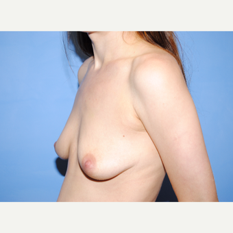 25-34 year old woman treated with Breast Lift with Implants before 3763270