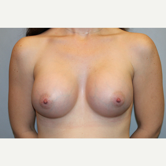 25-34 year old woman treated with Breast Augmentation after 3569905