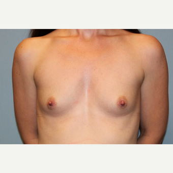 25-34 year old woman treated with Breast Augmentation before 3569905