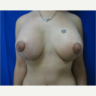 30 year old woman treated with Breast Lift with Implants after 3726566