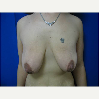 30 year old woman treated with Breast Lift with Implants before 3726566