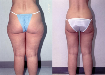 34-year-old woman treated with Liposuction. after 1309211