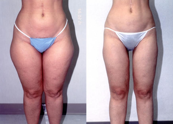 34-year-old woman treated with Liposuction. before 1309211