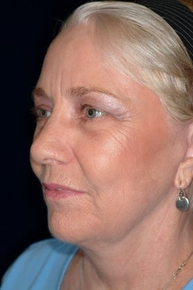 63 Year Old Female with Mutiple Facial Rejuvenation Procedures