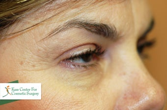 Midface lift, upper and lower eyelid surgery, Hetter resurfacing chemical peel before 433480