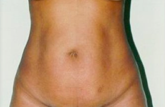 Tummy Tuck before 378515