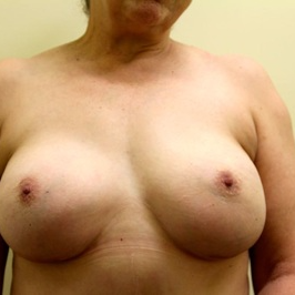55-64 year old woman treated with Breast Reconstruction after 2802853