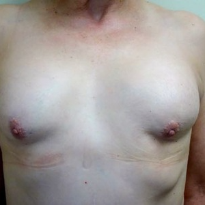 55-64 year old woman treated with Breast Reconstruction before 2802853