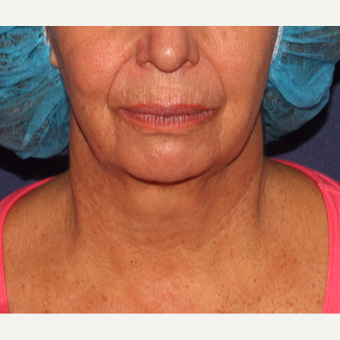 55-64 year old woman treated with Kybella after 3137132