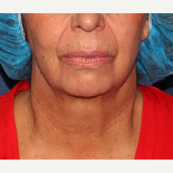 55-64 year old woman treated with Kybella before 3137132