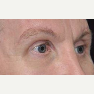 Brow Lift after 3148578