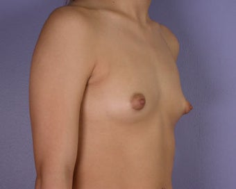 Breast Augmentation before 281398