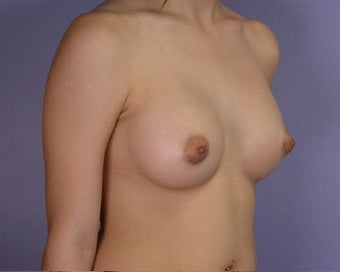 Breast Augmentation after 281398