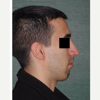 25-34 year old man treated with Rhinoplasty after 3287299