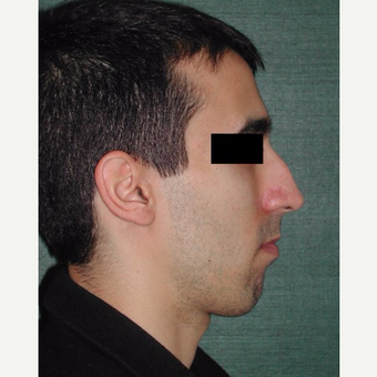 25-34 year old man treated with Rhinoplasty before 3287299