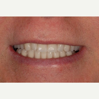 65-74 year old man treated with ClearChoice Dental Implants after 2262136