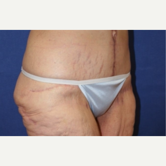 61 year old woman with a Panniculectomy with vertical wedge resection after 3541740
