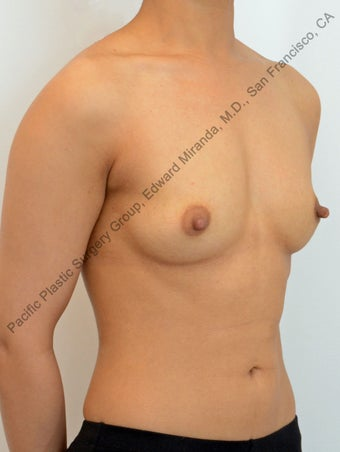 35 y.o. female, Breast Augmentation with Mentor Silicone Implants 858047