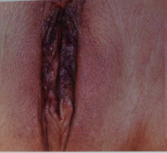 Vaginal Rejuvenation & Labiaplasty after 933441