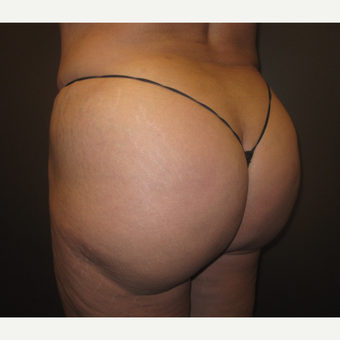 45-54 year old woman treated with Brazilian Butt Lift after 3241371