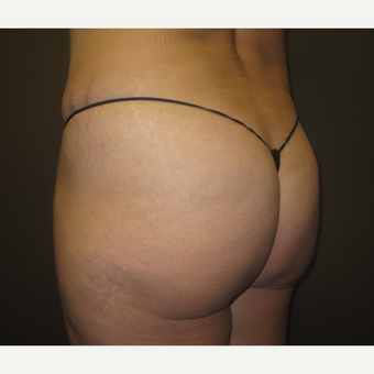 45-54 year old woman treated with Brazilian Butt Lift before 3241371