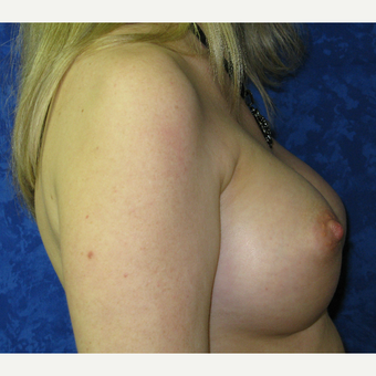 35-44 year old woman treated with Breast Implants after 3301214