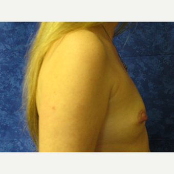 35-44 year old woman treated with Breast Implants before 3301214