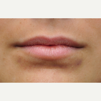 Juvederm to add volume and naturally roll the lips outward before 3097344