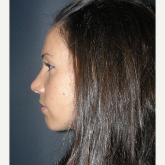 25-34 year old woman treated with Rhinoplasty after 3691968