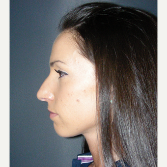 25-34 year old woman treated with Rhinoplasty before 3691968