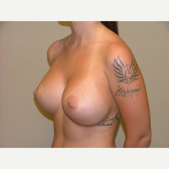 25-34 year old woman treated with Breast Implants after 3124905