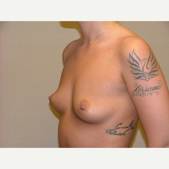 25-34 year old woman treated with Breast Implants before 3124905