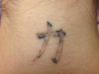 Chinese Character before and after two Picosure Treatments after 1042605