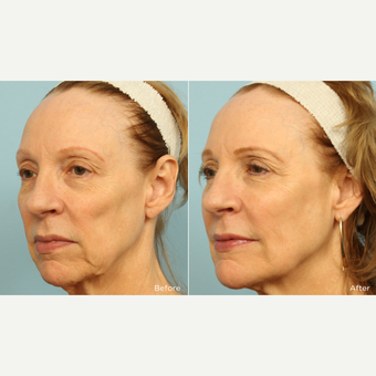 55-64 year old woman treated with Voluma before 3220101