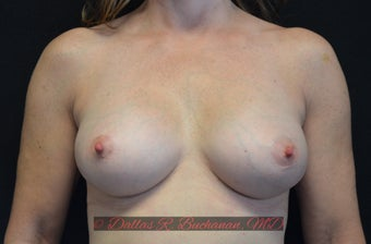 45 year old woman treated with Breast Augmentation after 3319896