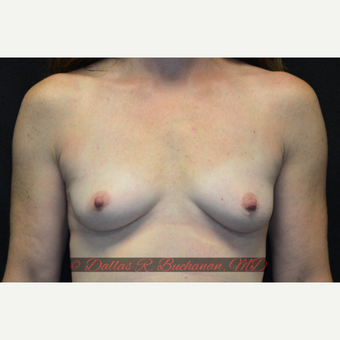 45 year old woman treated with Breast Augmentation before 3319896