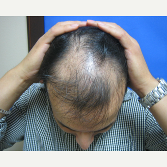 45-54 year old woman treated with Hair Transplant before 3664083