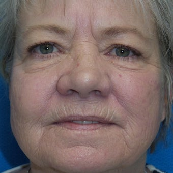 55-64 year old woman treated with Phenol Peel