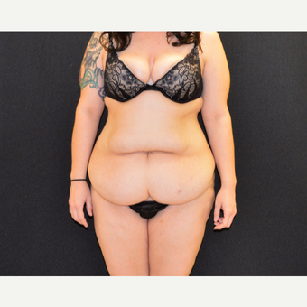 "This 33 year old is 5'2"" and 150 pounds.  She underwent Dr. Campanile's patented CLASS Tummy Tuck before 3774890"