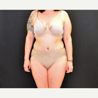 "This 33 year old is 5'2"" and 150 pounds.  She underwent Dr. Campanile's patented CLASS Tummy Tuck after 3774890"