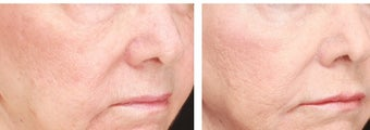 Lifting of cheeks and nasolabial folds with Radiesse